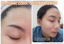 Bí quyết trị mụn và dưỡng trắng da với liệu trình 3 tháng