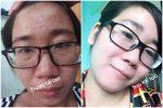 Hiệu quả của mộc nhân giúp tái tạo da và trị mụn, Kayoko giúp dưỡng trắng da